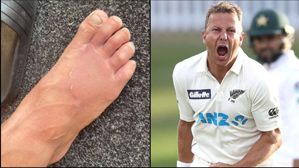 NZ v PAK 2020-21: Neil Wagner likely to be out of actions for 5-6 weeks; will miss second Test