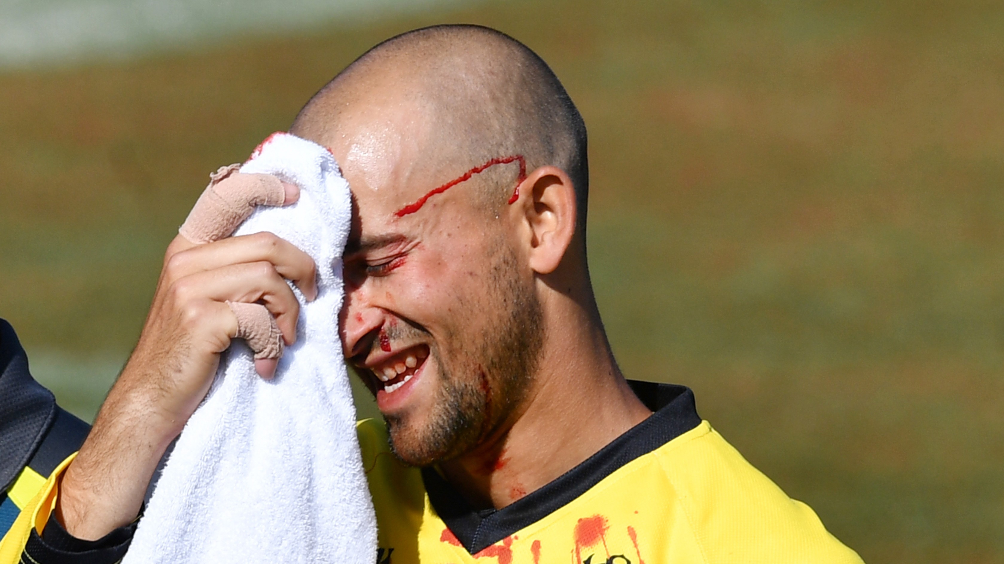 WATCH- Ashton Agar gets hit in face after dropping his brother Wes' catch during Marsh Cup