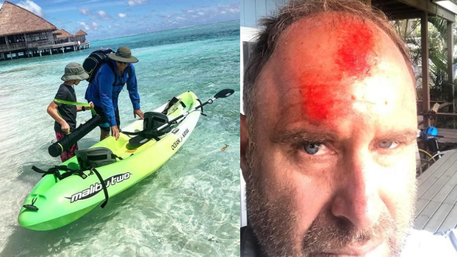 Matthew Hayden fractures bone in spine after surfing accident