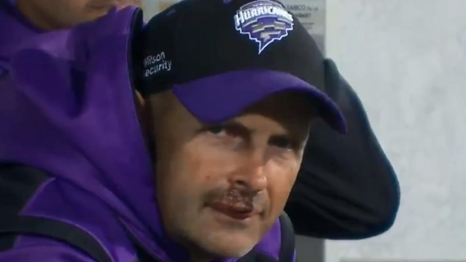 Gary Kirsten sufferes a major jaw injury in Hobart Hurricanes' practice session