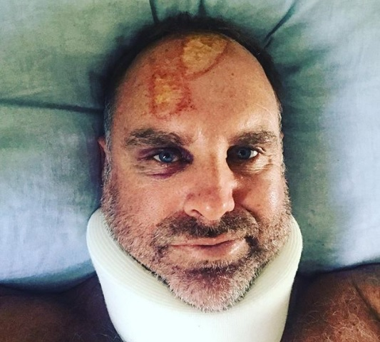 Matthew Hayden posted a photograph of his injury | Instagram