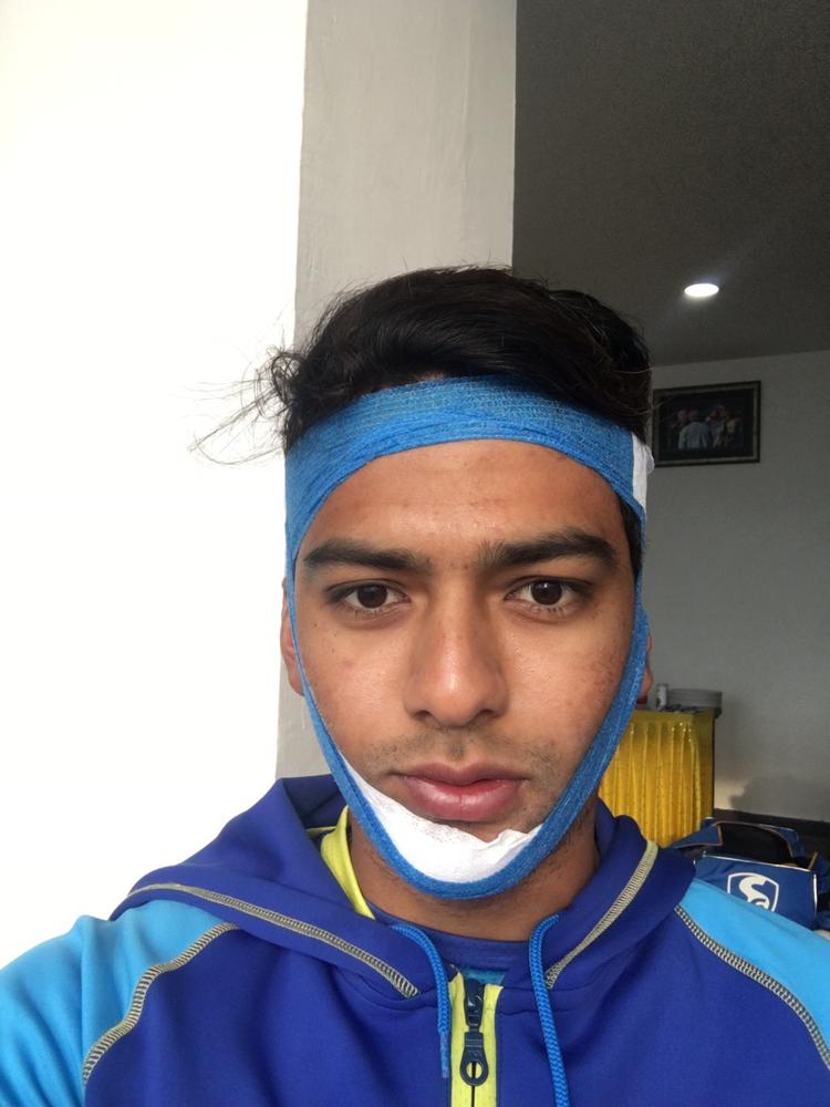 Unmukt Chand scored a brilliant ton with a broken jaw (Source: Twitter)