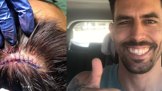 Mitchell Johnson gets injured at gym; shares picture on Instagram