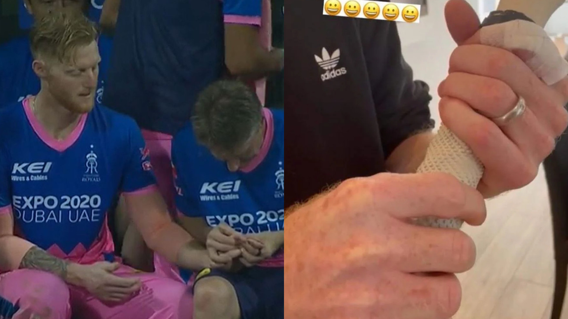 Ben Stokes gives an update on his injured finger; says he's making progress