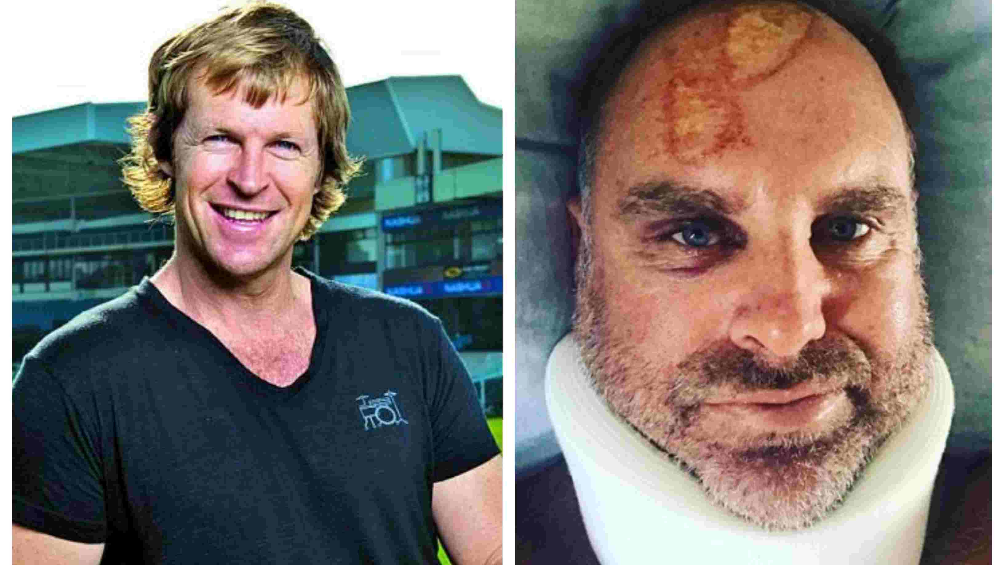 Jonty Rhodes compares Matthew Hayden's head injury to Tamil Nadu's coast
